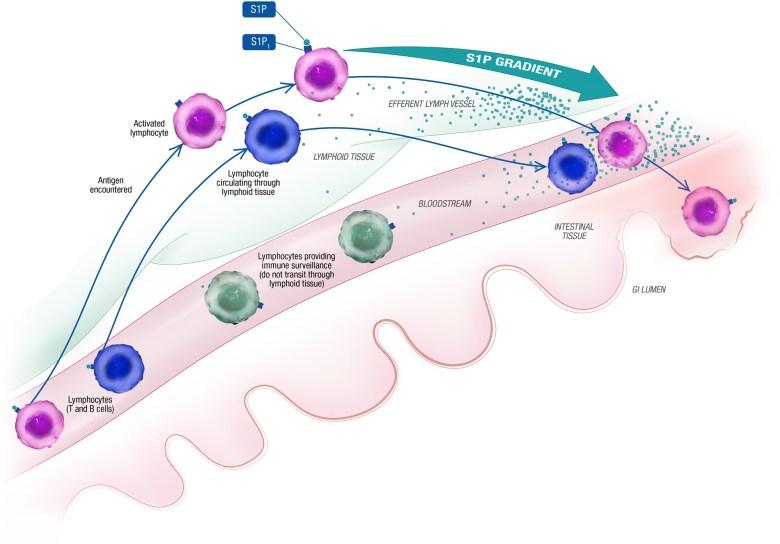 Озанимод: новое лекарство против язвенного колита и болезни Крона