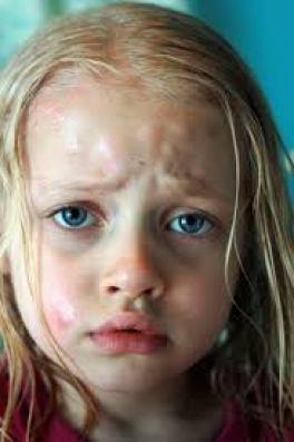 mosquito bite remedies that work