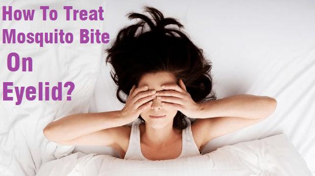 mosquito bite on eyelid treatment