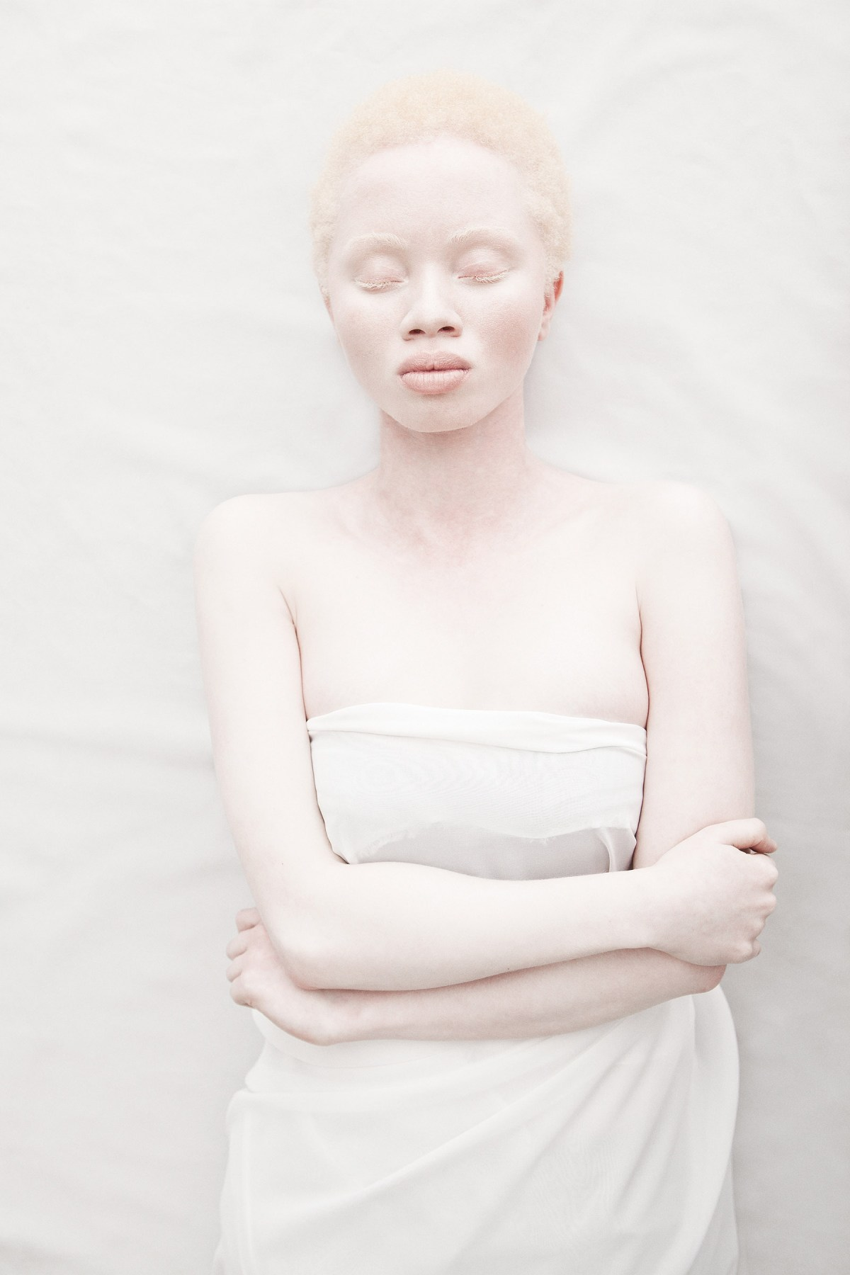 african-albinism-moss-and-fog-4