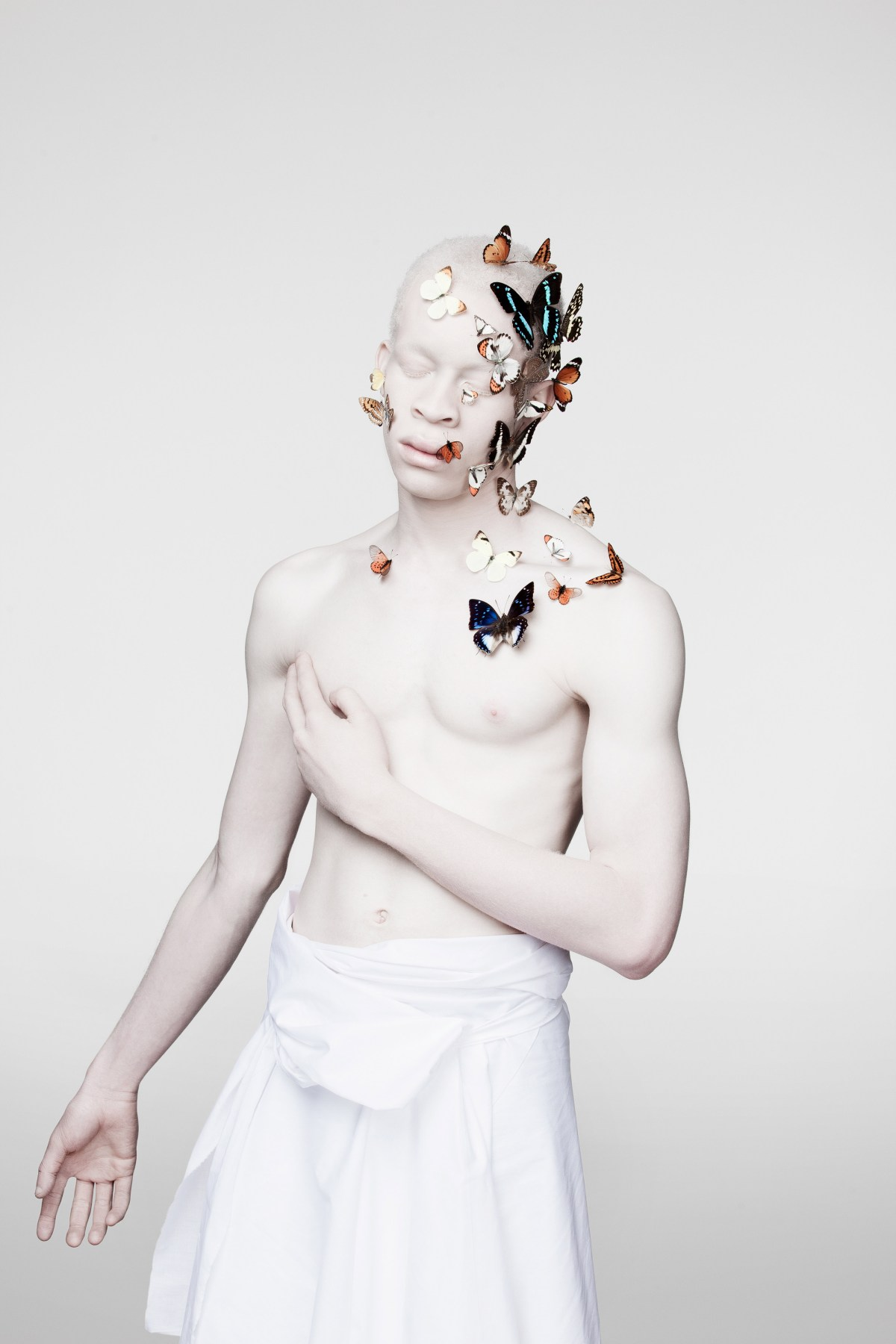 african-albinism-moss-and-fog-9