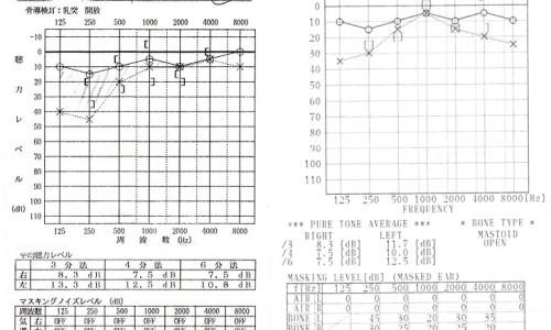 突発性難聴のグラフ
