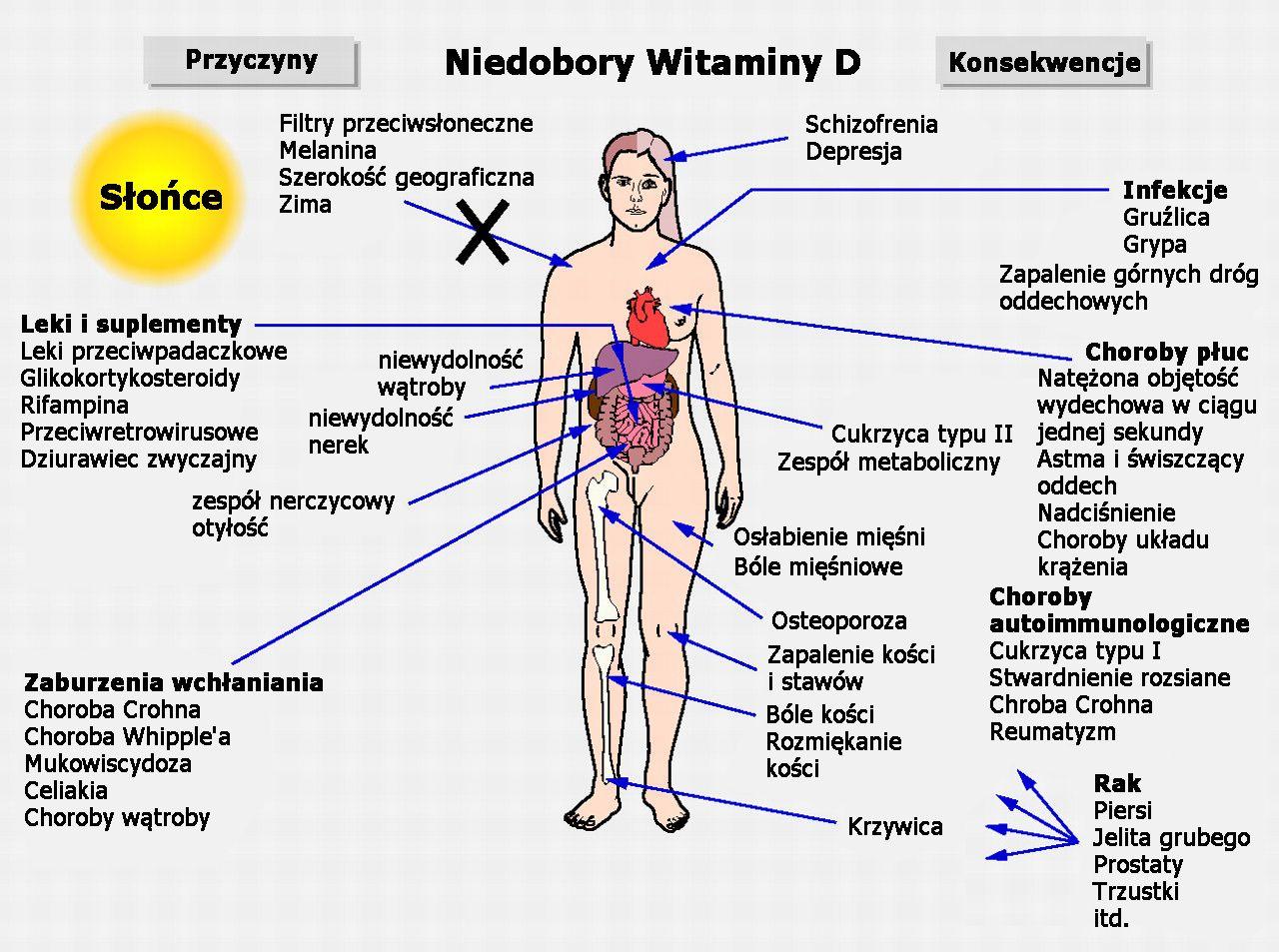 witamina-d-niedobry-grafika