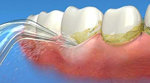 Waterpik wp900 cleaning gums