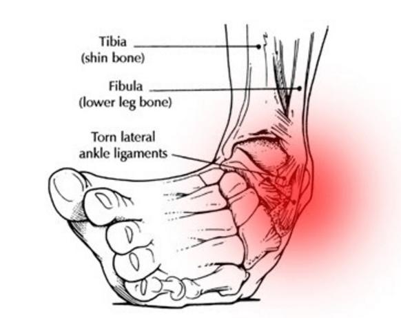Ankle-Sprain-Physio-Sydney-CBD.png