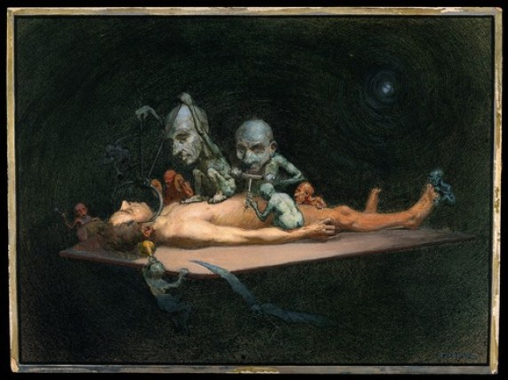 V0017053 An unconscious naked man lying on a table being attacked by