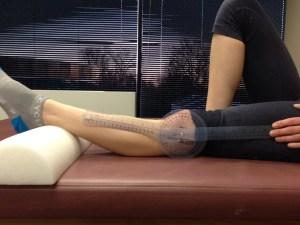 KneeHypermobility
