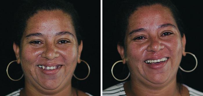 brazilian-dentist-travel-poor-people-teeth-fix-felipe-rossi-24-5db941af5d19b__700