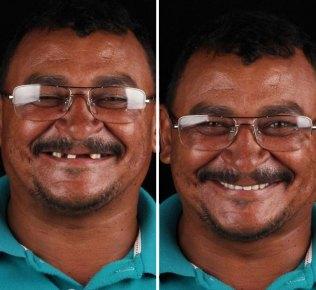 brazilian-dentist-travel-poor-people-teeth-fix-felipe-rossi-36-5db9502187fb1__700