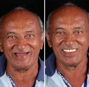 brazilian-dentist-travel-poor-people-teeth-fix-felipe-rossi-42-5db953fe93fd6__700