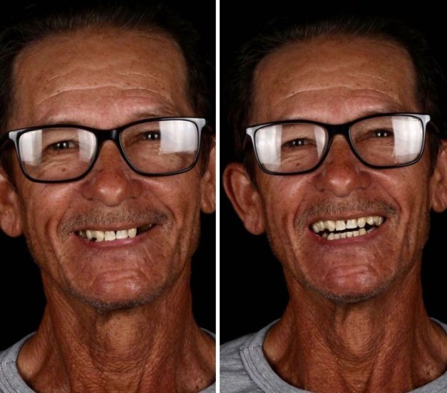 brazilian-dentist-travel-poor-people-teeth-fix-felipe-rossi-48-5db954d2dcb49__700