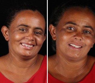 brazilian-dentist-travel-poor-people-teeth-fix-felipe-rossi-50-5db955d8c27f3__700