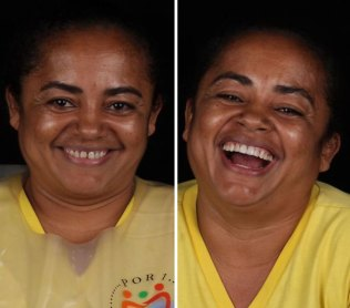 brazilian-dentist-travel-poor-people-teeth-fix-felipe-rossi-51-5db956176454c__700