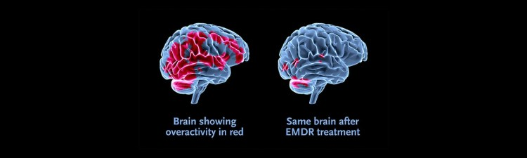 Two, three dimensional brains in the middle of the blank picture. The one on the left shows a brain with overactivity, and the affected area is seen throughout the brain. The one on the right shows the same brain after emdr treatment, and the affected areas have significantly decreased. Moxie Family Therapy offers trauma therapy, emdr treatment, and more! Contact us today for support.
