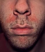 """Seborrhoeic dermatitis highres"" by Roymishali - Own work. Licensed under CC BY-SA 3.0 via Wikimedia Commons - http://commons.wikimedia.org/wiki/File:Seborrhoeic_dermatitis_highres.jpg#/media/File:Seborrhoeic_dermatitis_highres.jpg"