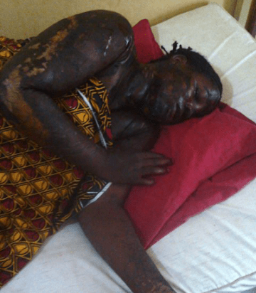 Photo: 27-year-old woman dies after acid attack in Benue State