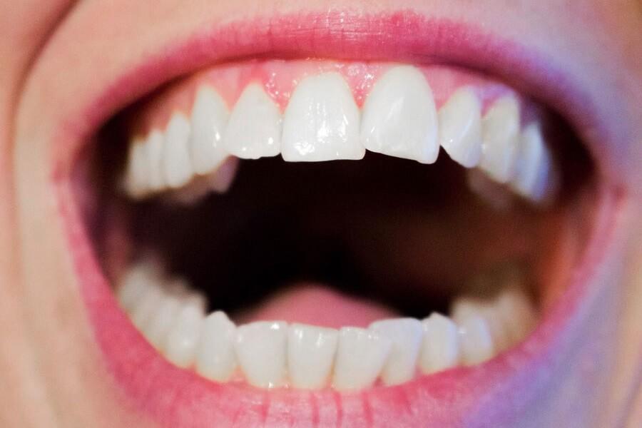 Comment blanchir ses dents naturellement ?