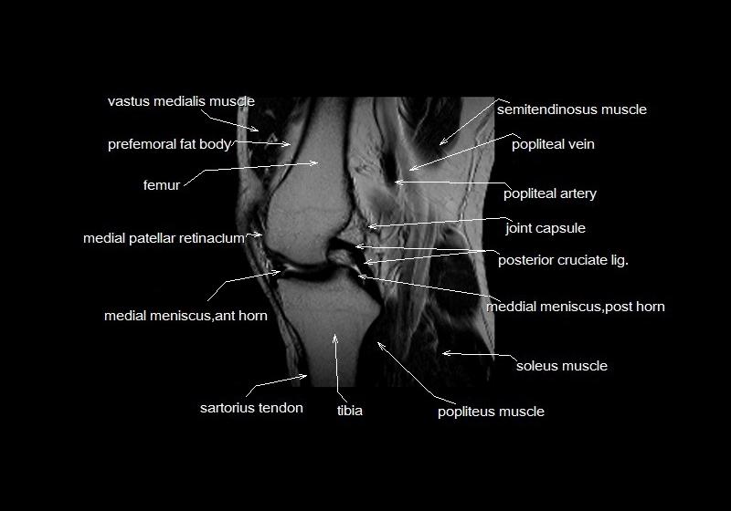 Hand Diagram Ligaments Mri Knee Anatomy Knee Sagittal Anatomy Free Cross