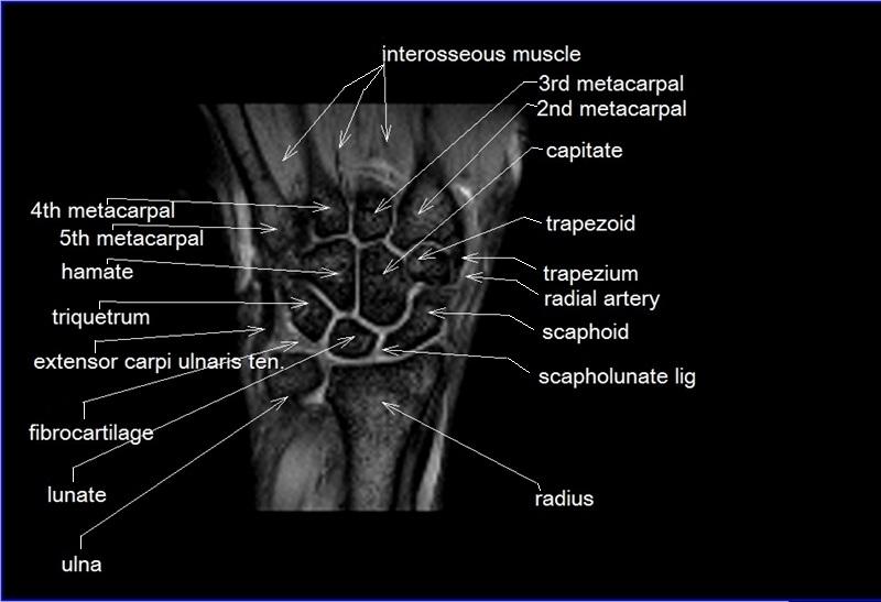 Hand Diagram Ligaments Mri Wrist Coronal Anatomy Wrist Tendon And Ligaments