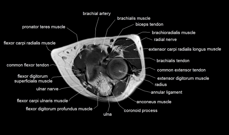 mri anatomy of elbow | axial cross sectional anatomy of ...
