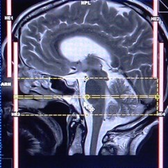 Internal Brain Diagram Hip Joint Auditory Meatus(iams) Mri Protocols And Planning   Indications For Iam's Scan
