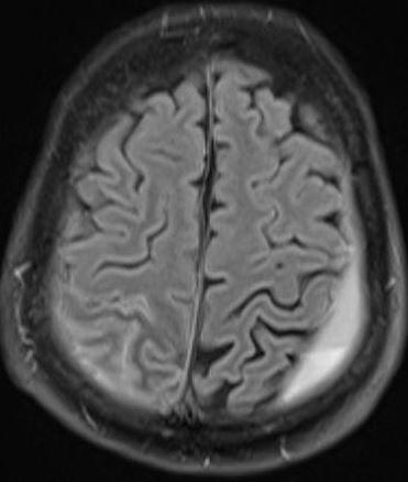 Subarachnoid hemorrhage MRI  Questions and Answers in MRI