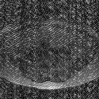 Data artifacts  Questions and Answers in MRI