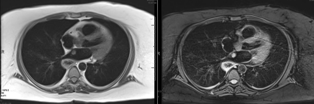 Triple inversion recovery cardiac MRI  Questions and Answers in MRI
