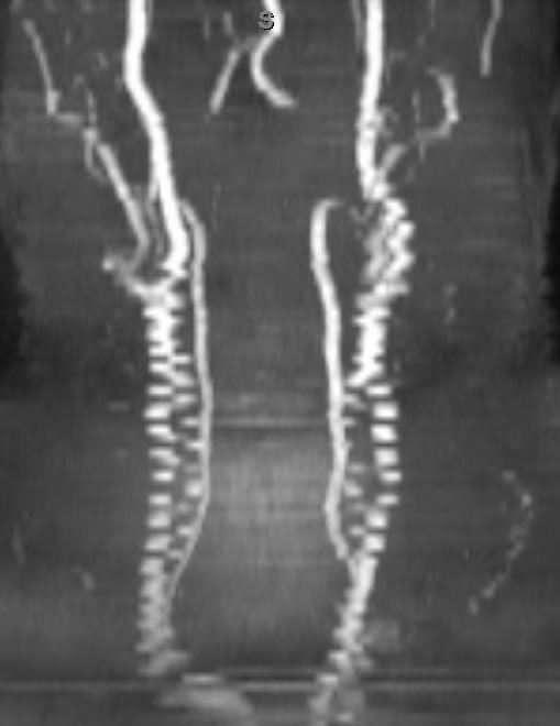 TOF MRA Artifacts  Questions and Answers in MRI