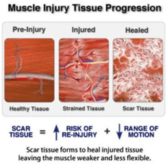 Muscle Injury Tissue Progression