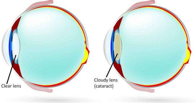 Schematic diagram of cataract