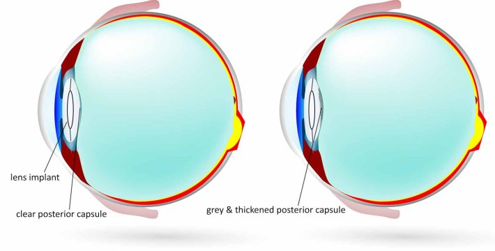The schematic on the left shows a lens implant inside the capsular bag. On the right image, the area of lens capsule behind the implant has become grey and thickened. This gets in the way of the patient's vision, causing blurring or glare, or sometimes ghosting of images.