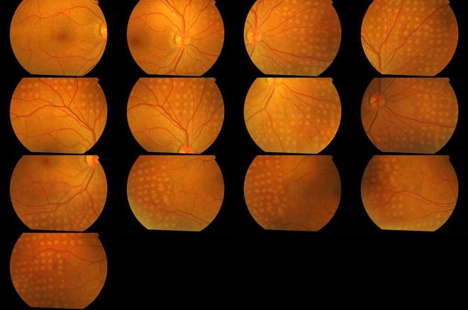 This series of colour retinal photographs documents a retina recently treated by Mr Shah with laser for diabetic retinopathy.