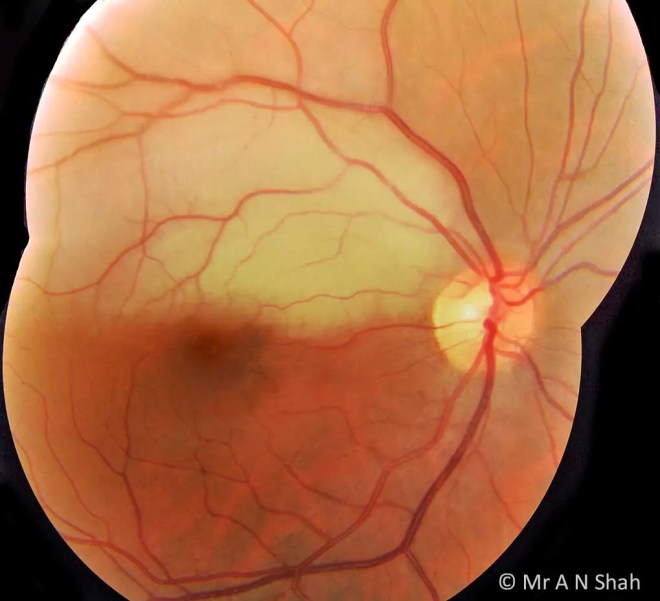 This colour fundus photograph documents a recent-onset BRAO affecting the upper half of the macula of this patient's right eye. This area of retina is seen here as pale due to the recent loss of blood supply. Its appearance on colour photography will return to normal in a few weeks' time, although OCT scanning will always demonstrate inner retinal thinning in this area.