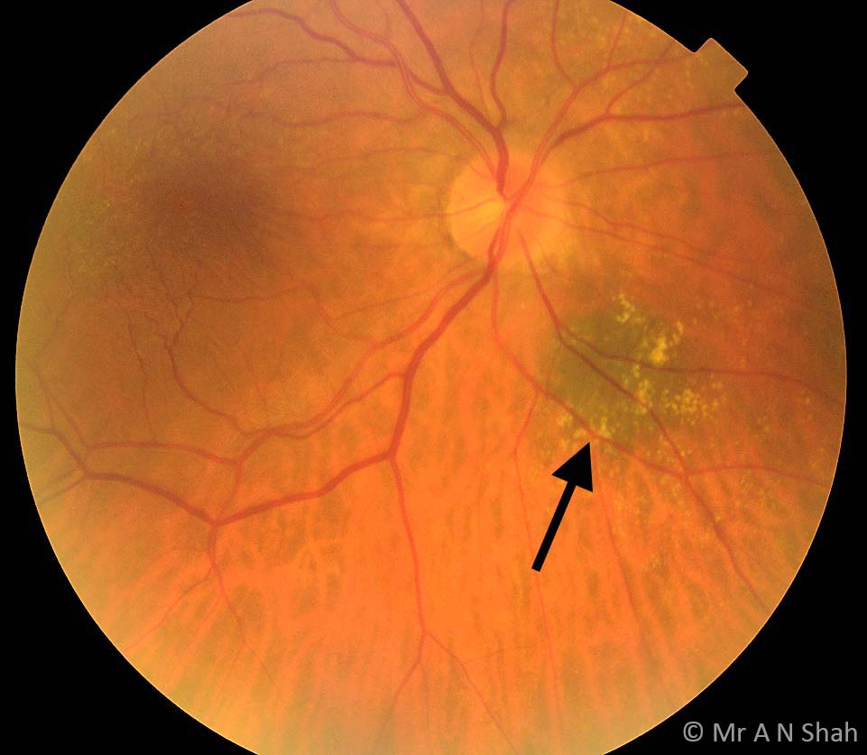 The black arrow points to a choroidal naevus near the optic nerve head in this 76 year old lady.