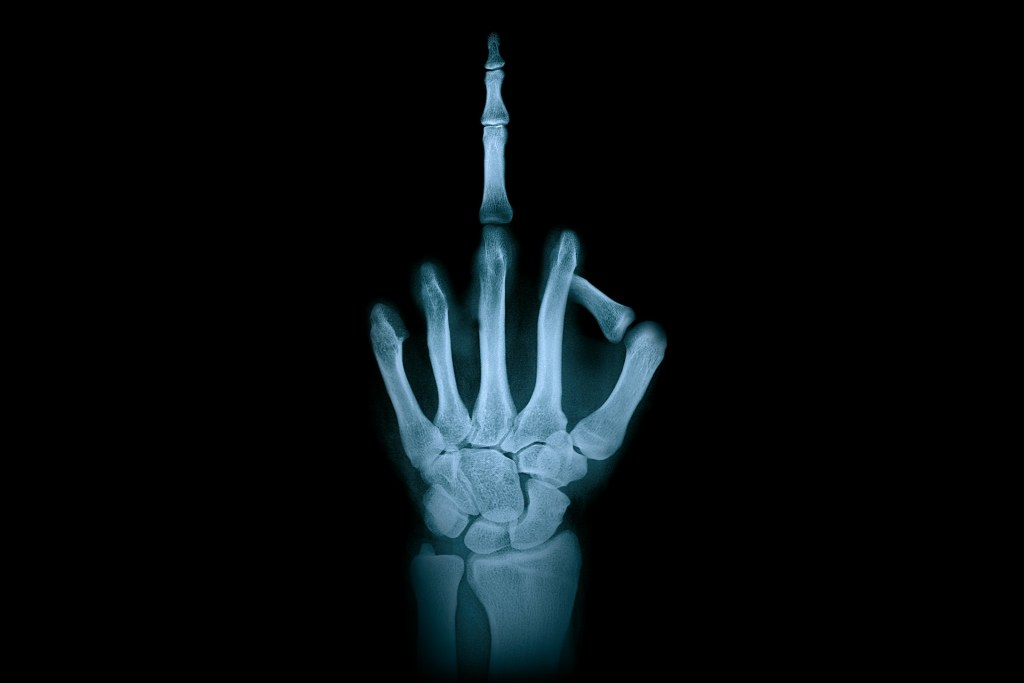 X-ray of someone sticking up their middle finger