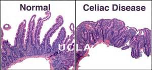 celiac disease 101