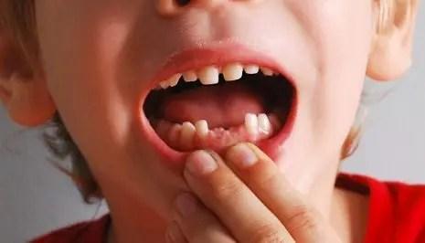 تفسير رؤية سقوط الأسنان في المنام لابن سيرين موقع مصري
