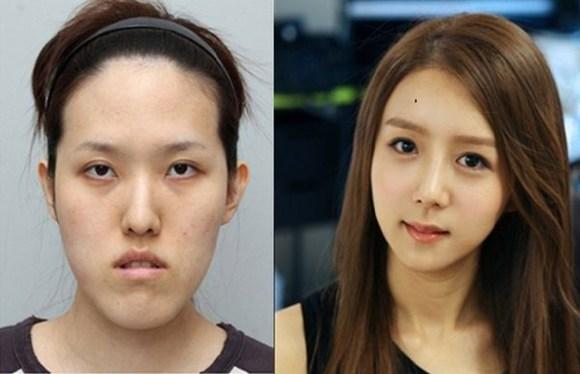 after korea midify 02