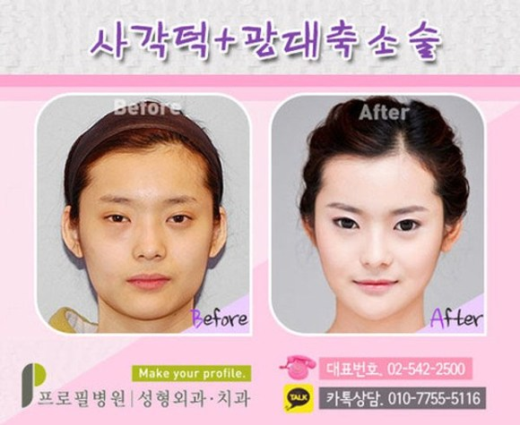 after korea midify 08