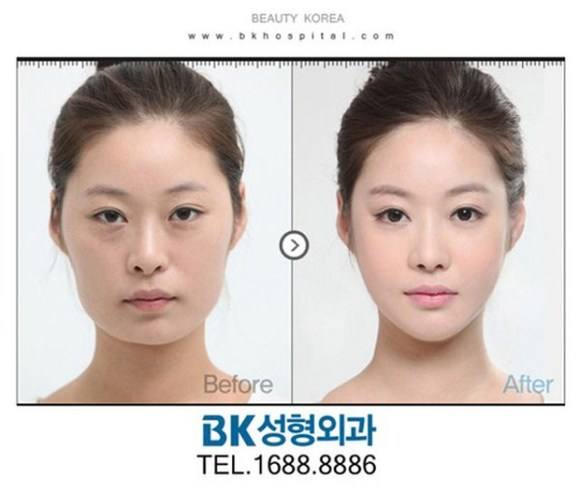 after korea midify 10