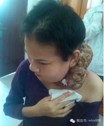 真實的現眼報應!殺蛇吃蛇又墮胎,她的脖子上長出恐怖的「人形腫瘤」!