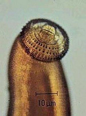 【超重口味慎入】六種可以寄生人體的寄生蟲