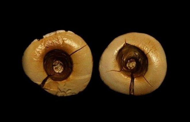 Каменный век -  Стоматологические процедуры