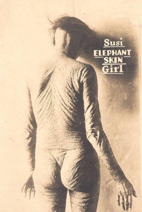 Сюзи (Susi), девушка со слоновьей кожей. «Цирк уродов»: Страшное зрелище (фото)