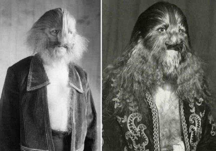 Стефан Бибровски (Stephan Bibrowski), Лайонел — человек с львиным лицом. «Цирк уродов»: Страшное зрелище (фото)