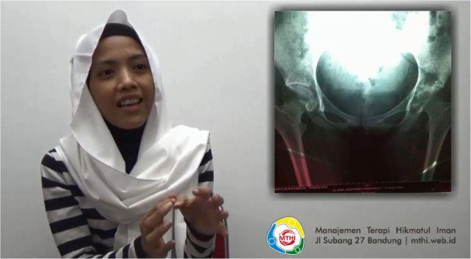 alvina osteoarthritis hikmatul iman