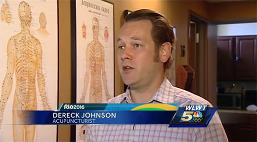 derek-johnson-acupuncturist-cupping-wlwt