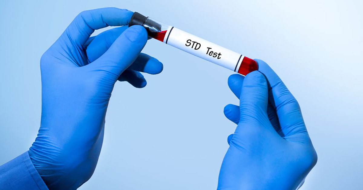 Where to get std testing in Montreal
