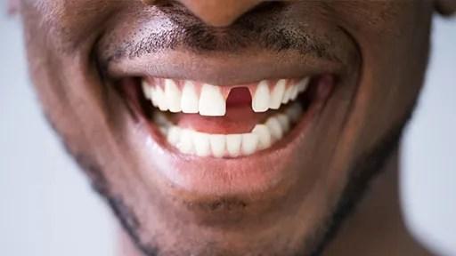teeth_replacement_arrow_dental_nairobi_kenya